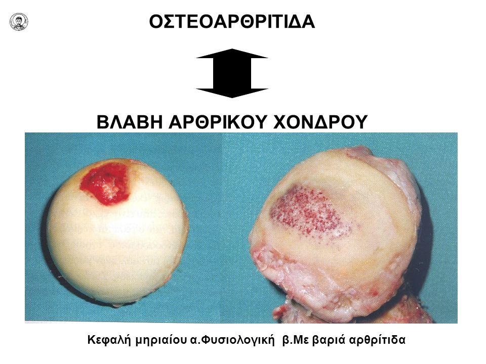 ΟΣΤΕΟΑΡΘΡΙΤΙΔΑ ΒΛΑΒΗ ΑΡΘΡΙΚΟΥ ΧΟΝΔΡΟΥ Κεφαλή μηριαίου α.Φυσιολογική β.Με βαριά αρθρίτιδα