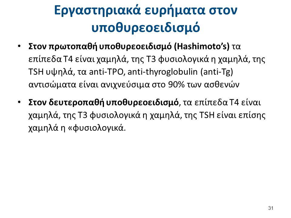Εργαστηριακά ευρήματα στον υποθυρεοειδισμό Στον πρωτοπαθή υποθυρεοειδισμό (Hashimoto's) τα επίπεδα Τ4 είναι χαμηλά, της Τ3 φυσιολογικά η χαμηλά, της T