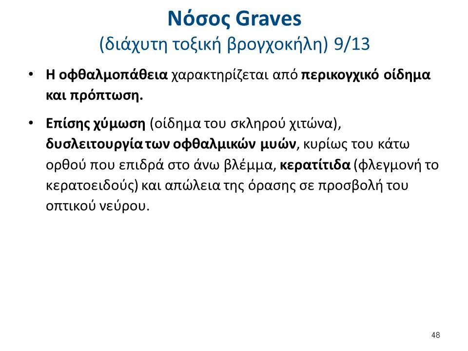 Νόσος Graves (διάχυτη τοξική βρογχοκήλη) 9/13 Η οφθαλμοπάθεια χαρακτηρίζεται από περικογχικό οίδημα και πρόπτωση. Επίσης χύμωση (οίδημα του σκληρού χι