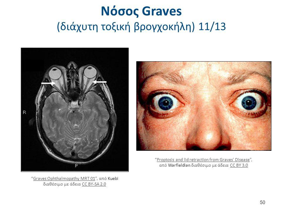 """Νόσος Graves (διάχυτη τοξική βρογχοκήλη) 11/13 50 """"Proptosis and lid retraction from Graves' Disease"""", από Warfieldian διαθέσιμο με άδεια CC BY 3.0Pro"""