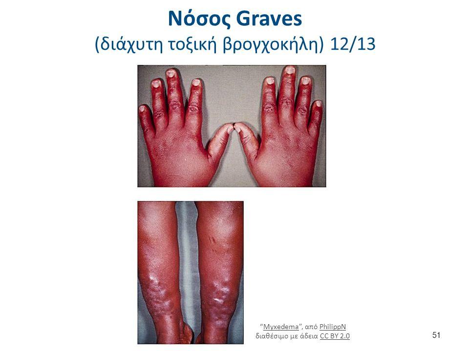 """Νόσος Graves (διάχυτη τοξική βρογχοκήλη) 12/13 51 """"Myxedema"""", από PhilippN διαθέσιμο με άδεια CC BY 2.0MyxedemaPhilippNCC BY 2.0"""