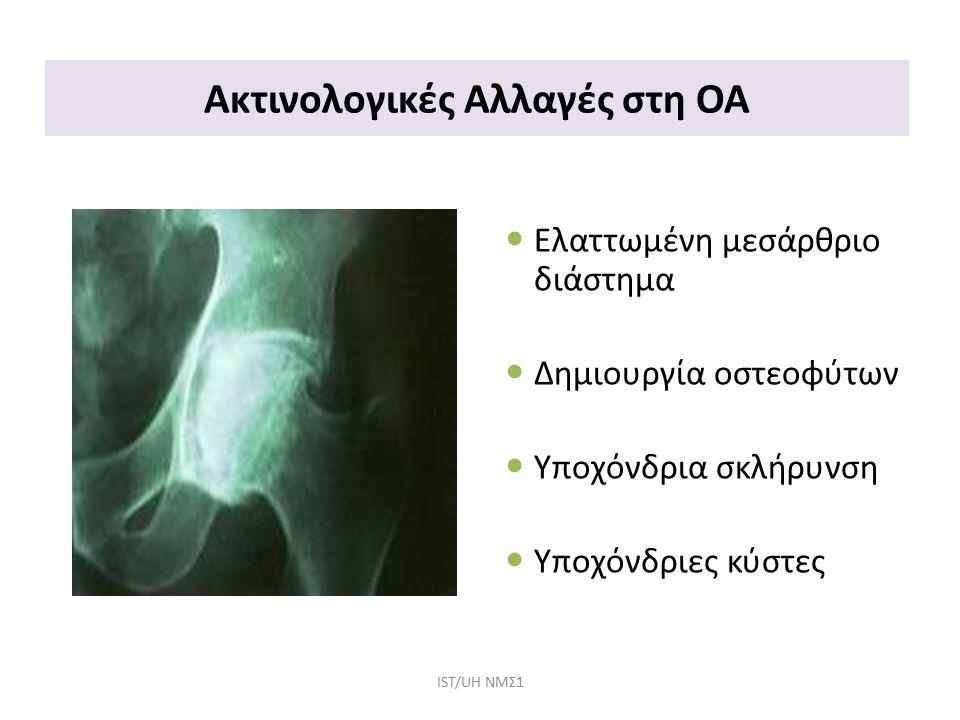 Ακτινολογικές Αλλαγές στη ΟΑ Ελαττωμένη μεσάρθριο διάστημα Δημιουργία οστεοφύτων Υποχόνδρια σκλήρυνση Υποχόνδριες κύστες IST/UH NΜΣ1