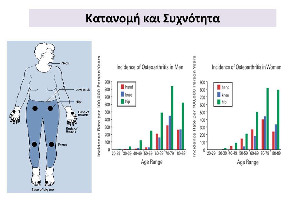 Παράγοντες Προδιάθεσης OA Άθλημα Τραυματισμός Ακινησία Επάγγελμα Γυναίκες σε σχέση με άντρες Καυκάσιοι Συγγενείς νόσοι Ελαττώματα κατά την ανάπτυξη Άνδρες >50 Γυναίκες >40 ΗλικίαΓενετικοί LifestyleΔΜΣ
