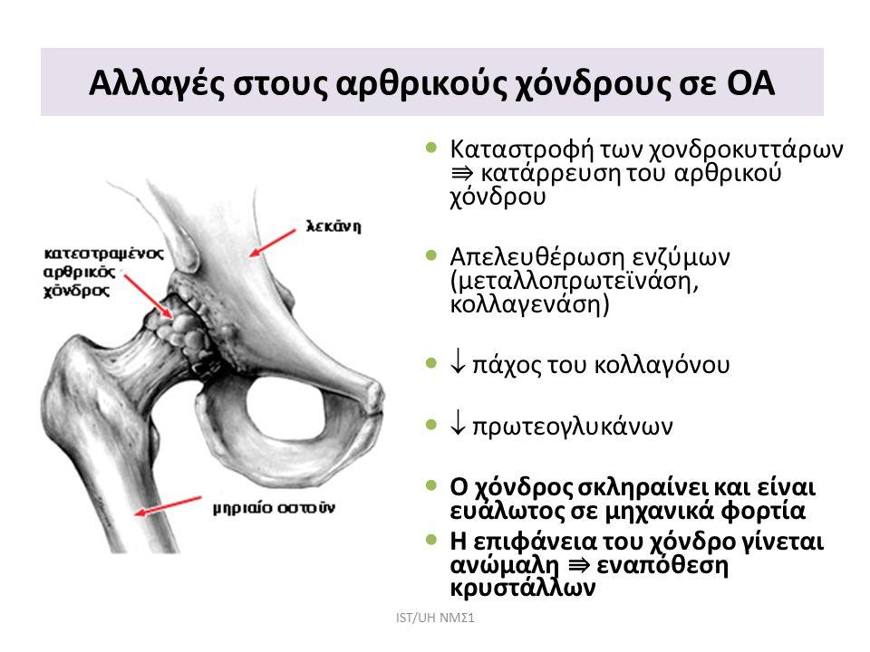 Συμπτώματα ασθενών με ΟΑ / Πόνος Περιοχή ΠόνουΠηγές Πόνου Βουβωνικός Πόνος Πόνος στην πρόσθια επιφάνεια του μηρού Αναφερόμενος πόνος στο γόνατο Πόνος στο γλουτό Οσφυαλγία ως αποτέλεσμα ανταλγικής βάδισης Ο χόνδρος δεν έχει νευρικές απολήξεις Πόνος προέρχεται από τις περιαρθρικές δομές πχ θύλακας & σύνδεσμοι Πόνος από τους χημικούς παράγοντες μιας φλεγμονής πχ προσταγλαδίνες IST/UH NΜΣ1