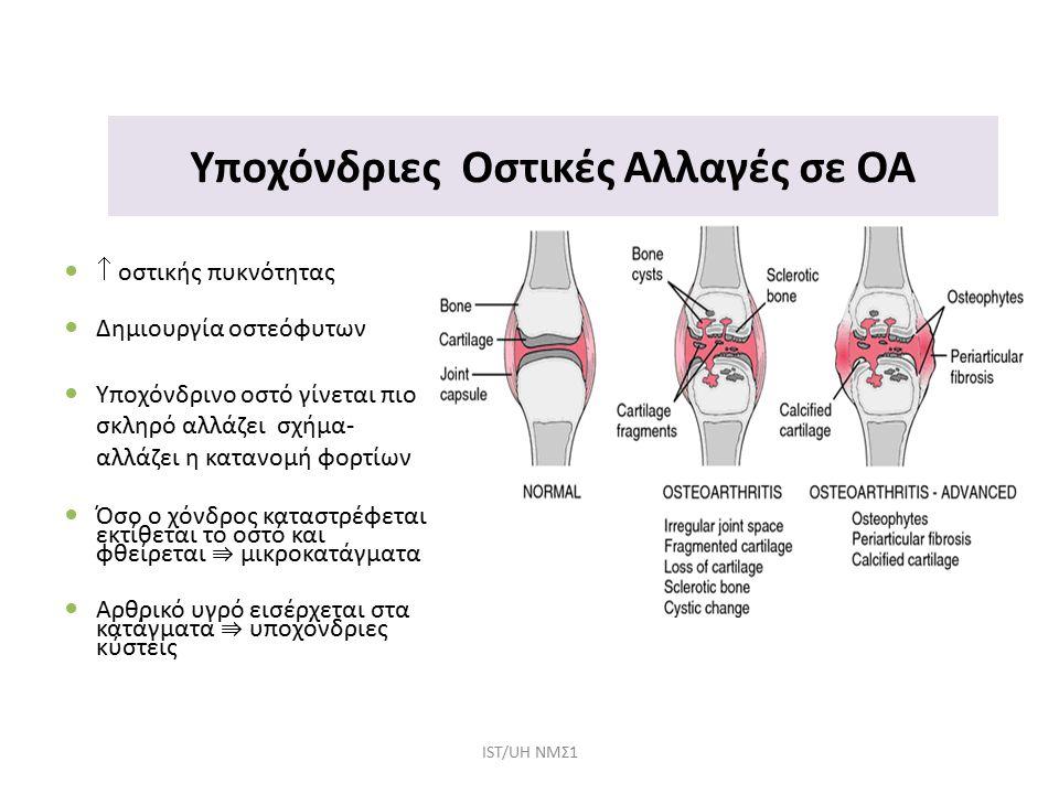 Υποχόνδριες Οστικές Αλλαγές σε ΟΑ  οστικής πυκνότητας Δημιουργία οστεόφυτων Υποχόνδρινο οστό γίνεται πιο σκληρό αλλάζει σχήμα- αλλάζει η κατανομή φορτίων Όσο ο χόνδρος καταστρέφεται εκτίθεται το οστό και φθείρεται ⇛ μικροκατάγματα Αρθρικό υγρό εισέρχεται στα κατάγματα ⇛ υποχόνδριες κύστεις IST/UH NΜΣ1