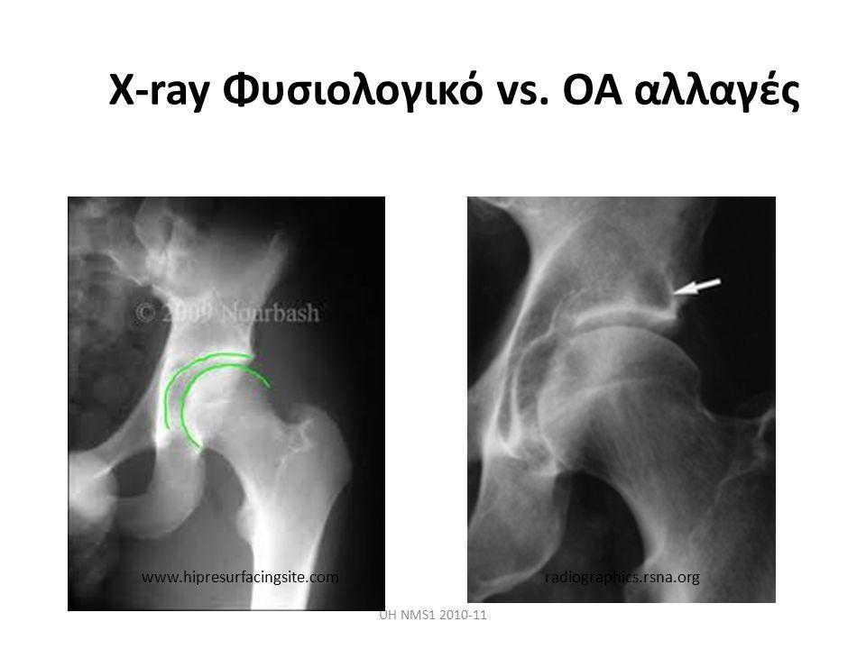 X-ray Φυσιολογικό vs. OA αλλαγές UH NMS1 2010-11 www.hipresurfacingsite.comradiographics.rsna.org
