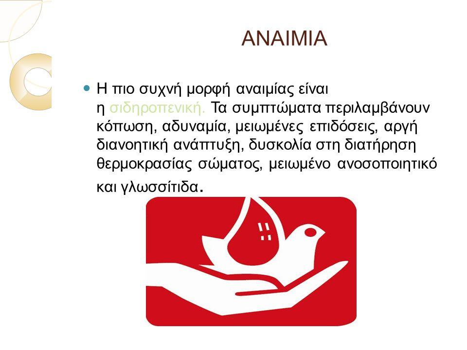 ΑΝΑΙΜΙΑ Η πιο συχνή μορφή αναιμίας είναι η σιδηροπενική. Τα συμπτώματα περιλαμβάνουν κόπωση, αδυναμία, μειωμένες επιδόσεις, αργή διανοητική ανάπτυξη,