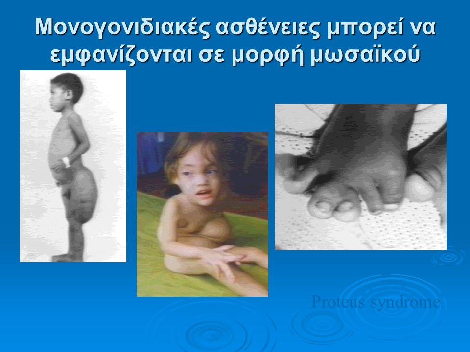 Μονογονιδιακές ασθένειες μπορεί να εμφανίζονται σε μορφή μωσαϊκού Proteus syndrome
