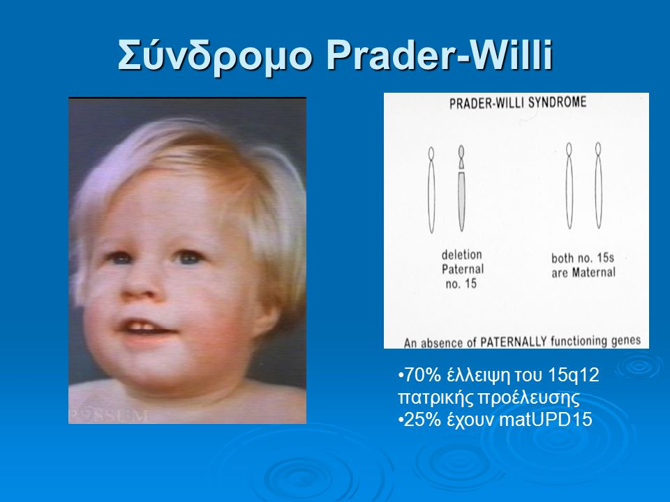 Σύνδρομο Prader-Willi 70% έλλειψη του 15q12 πατρικής προέλευσης 25% έχουν matUPD15