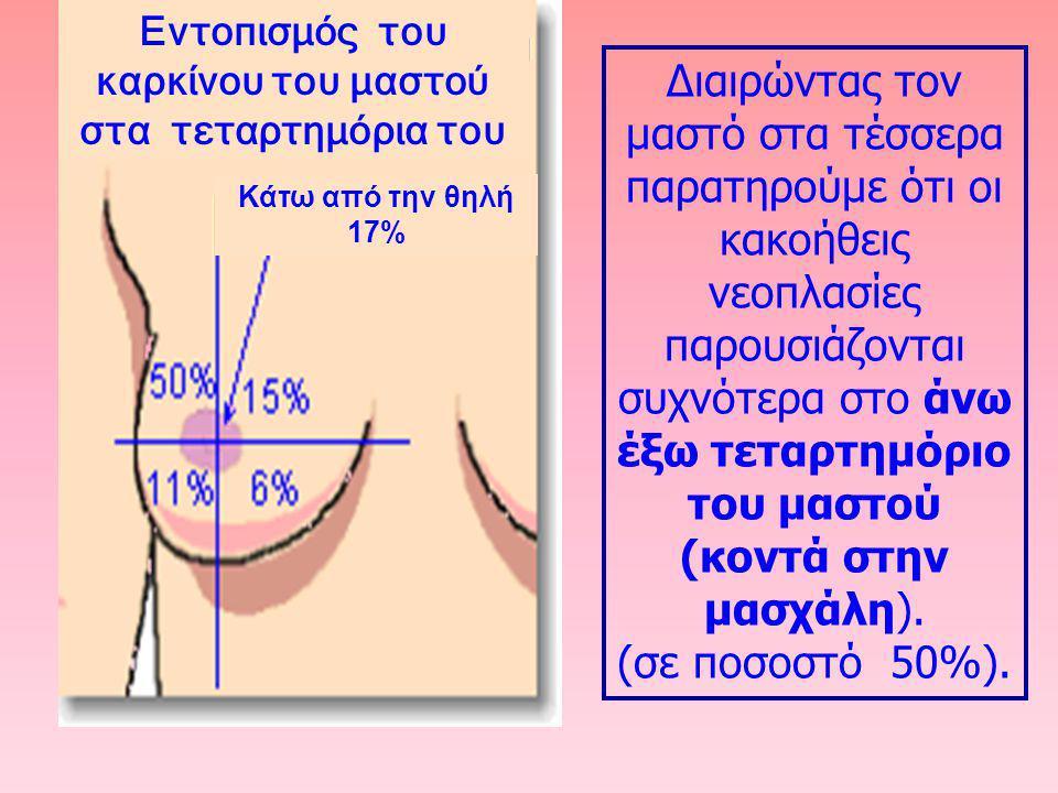 Διαιρώντας τον μαστό στα τέσσερα παρατηρούμε ότι οι κακοήθεις νεοπλασίες παρουσιάζονται συχνότερα στο άνω έξω τεταρτημόριο του μαστού (κοντά στην μασχ