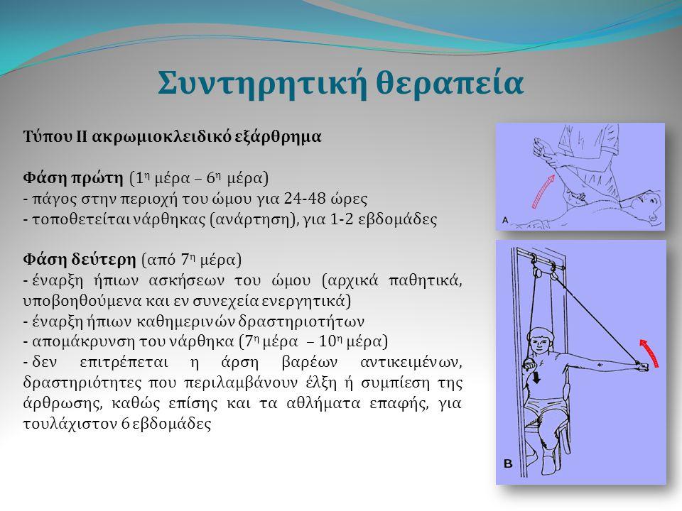 Συντηρητική θεραπεία Τύπου ΙΙ ακρωμιοκλειδικό εξάρθρημα Φάση πρώτη (1 η μέρα – 6 η μέρα) - πάγος στην περιοχή του ώμου για 24-48 ώρες - τοποθετείται ν