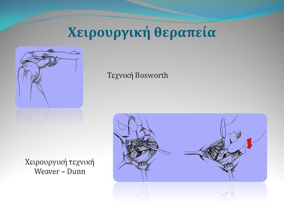 Χειρουργική θεραπεία Τεχνική Bosworth Χειρουργική τεχνική Weaver – Dunn