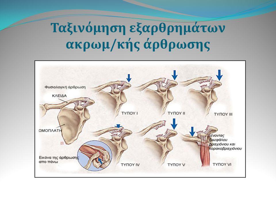 Αντικειμενικά ευρήματα κατά τη φυσική εξέταση Τύπος I - Ευαισθησία στην περιοχή του ακρωμίου κατά την ψηλάφιση - Οίδημα στην άρθρωση - Πόνος στο εύρος της κίνησης - Δεν υπάρχει εμφανής παραμόρφωση του ακρωμιακού άκρου της κλείδας Τύπος II - Ευαισθησία στην περιοχή του ακρωμίου κατά την ψηλάφιση - Μπορεί να υπάρχει μια μικρή προεξοχή του ακρωμιακού άκρου της κλείδας - Αυξημένη κινητικότητα κατά τον προσθιοπίσθιο άξονα εν συγκρίσει με την υγιή πλευρά Τύπος III - Εμφανή προεξοχή του ακρωμιακού άκρου της κλείδας - Προς τα κάτω παρεκτόπιση του ώμου και του βραχίονα - Το ακρωμιακό άκρο της κλείδας παρουσιάζει τόσο οριζόντια όσο και κάθετη αστάθεια
