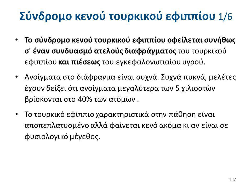 Σύνδρομο κενού τουρκικού εφιππίου 1/6 Το σύνδρομο κενού τουρκικού εφιππίου οφείλεται συνήθως σ' έναν συνδυασμό ατελούς διαφράγματος του τουρκικού εφιπ