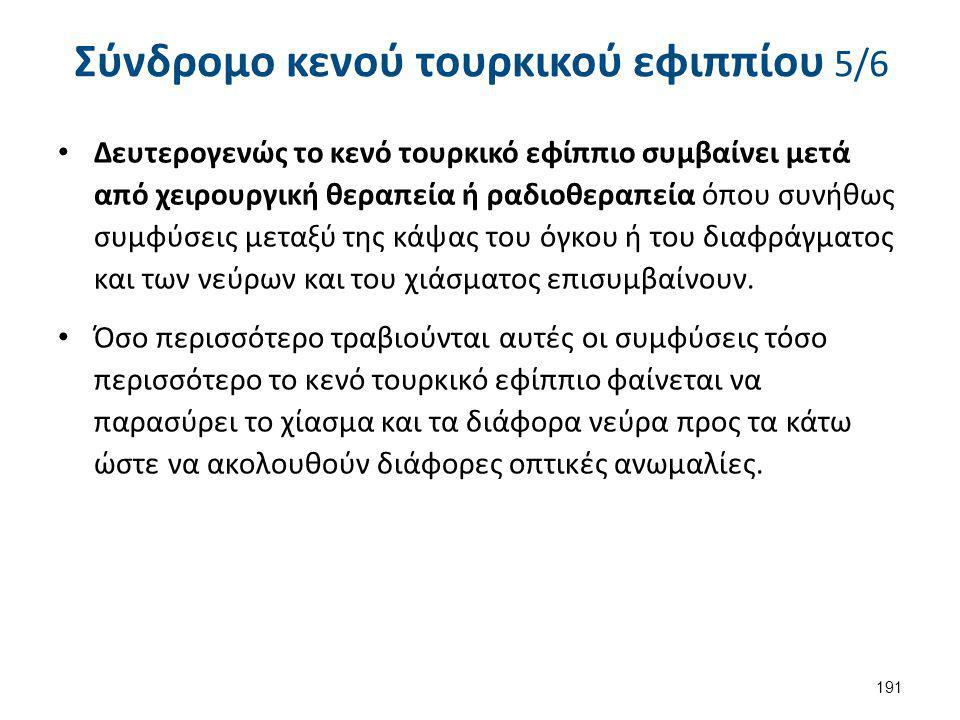 Σύνδρομο κενού τουρκικού εφιππίου 5/6 Δευτερογενώς το κενό τουρκικό εφίππιο συμβαίνει μετά από χειρουργική θεραπεία ή ραδιοθεραπεία όπου συνήθως συμφύ