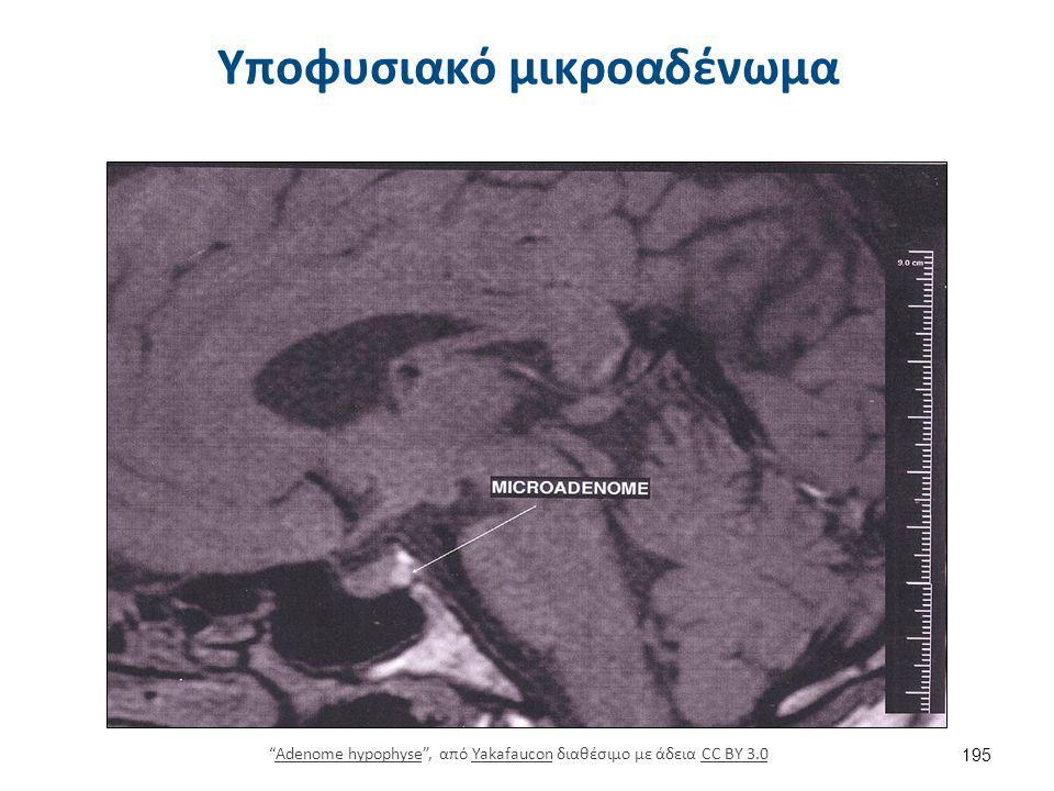 """Υποφυσιακό μικροαδένωμα 195 """"Adenome hypophyse"""", από Yakafaucon διαθέσιμο με άδεια CC BY 3.0Adenome hypophyseYakafauconCC BY 3.0"""