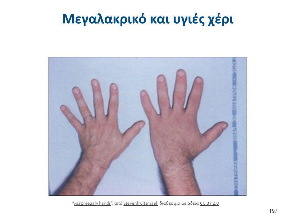 """Μεγαλακρικό και υγιές χέρι 197 """"Acromegaly hands"""", από Stevenfruitsmaak διαθέσιμο με άδεια CC BY 2.0Acromegaly handsStevenfruitsmaakCC BY 2.0"""