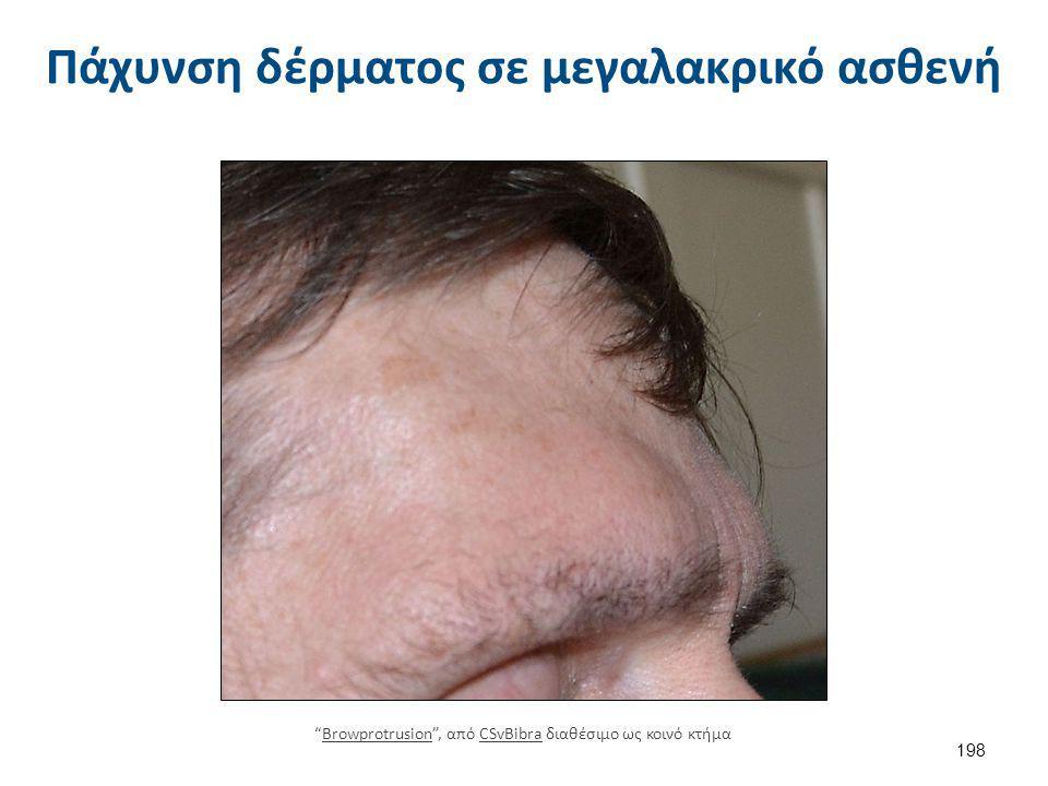 """Πάχυνση δέρματος σε μεγαλακρικό ασθενή 198 """"Browprotrusion"""", από CSvBibra διαθέσιμο ως κοινό κτήμαBrowprotrusionCSvBibra"""