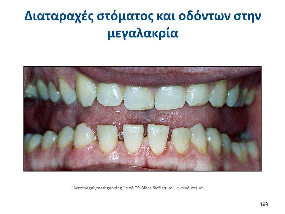 """Διαταραχές στόματος και οδόντων στην μεγαλακρία 199 """"Acromegalyteethgapping"""", από CSvBibra διαθέσιμο ως κοινό κτήμαAcromegalyteethgappingCSvBibra"""