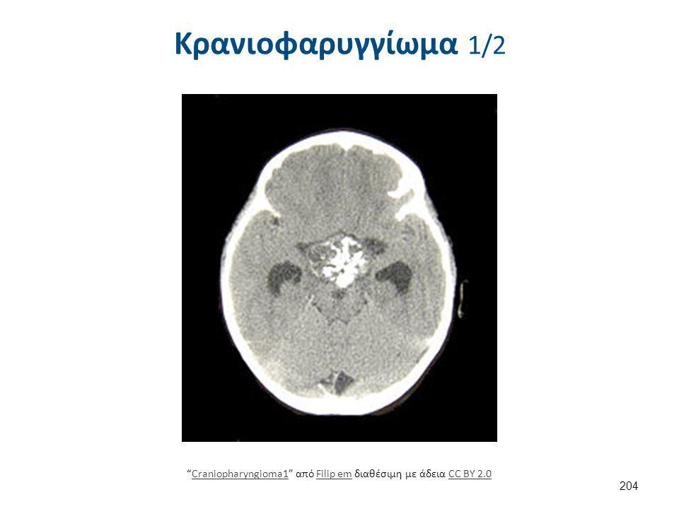 """Κρανιοφαρυγγίωμα 1/2 204 """"Craniopharyngioma1"""" από Filip em διαθέσιμη με άδεια CC BY 2.0Craniopharyngioma1Filip emCC BY 2.0"""