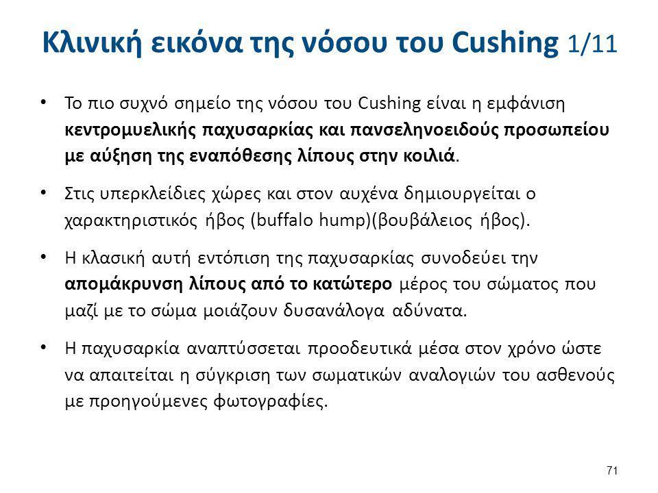 Κλινική εικόνα της νόσου του Cushing 1/11 Το πιο συχνό σημείο της νόσου του Cushing είναι η εμφάνιση κεντρομυελικής παχυσαρκίας και πανσεληνοειδούς πρ
