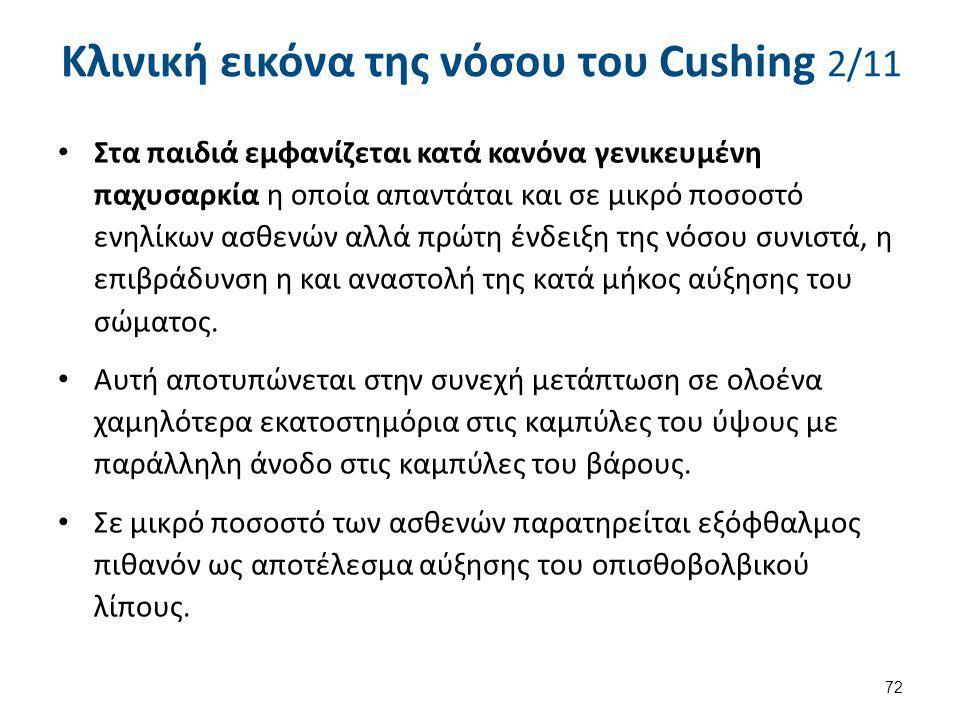 Κλινική εικόνα της νόσου του Cushing 2/11 Στα παιδιά εμφανίζεται κατά κανόνα γενικευμένη παχυσαρκία η οποία απαντάται και σε μικρό ποσοστό ενηλίκων ασ