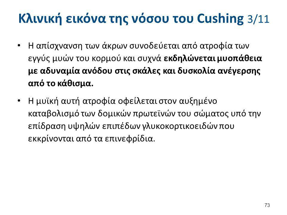 Κλινική εικόνα της νόσου του Cushing 3/11 Η απίσχνανση των άκρων συνοδεύεται από ατροφία των εγγύς μυών του κορμού και συχνά εκδηλώνεται μυοπάθεια με