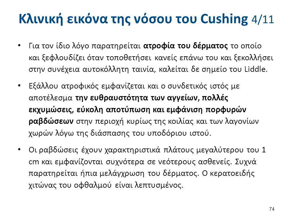 Κλινική εικόνα της νόσου του Cushing 4/11 Για τον ίδιο λόγο παρατηρείται ατροφία του δέρματος το οποίο και ξεφλουδίζει όταν τοποθετήσει κανείς επάνω τ