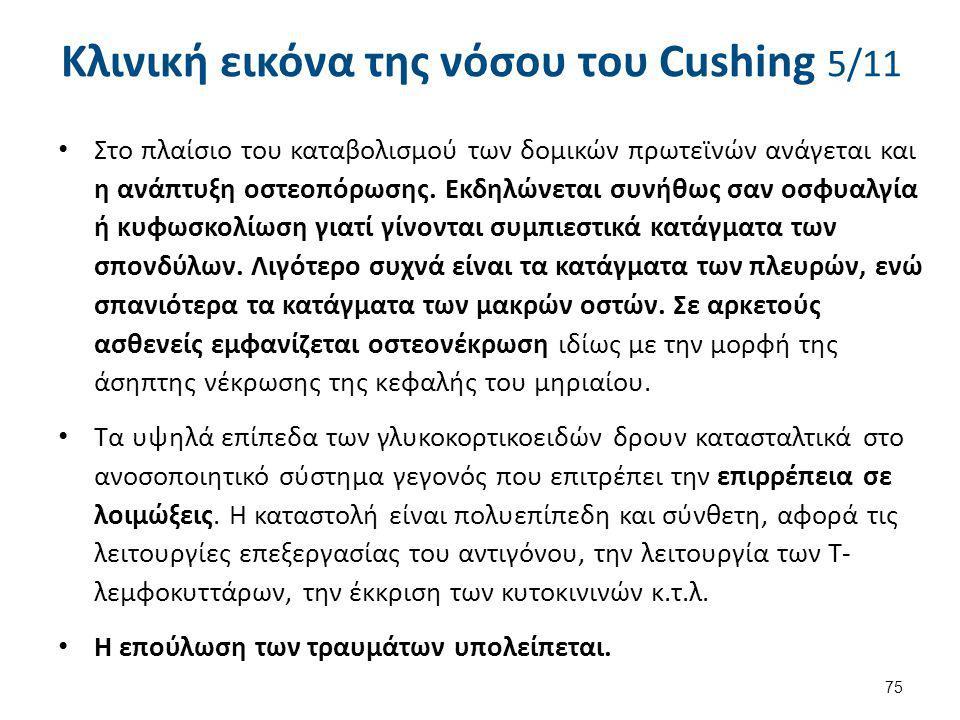 Κλινική εικόνα της νόσου του Cushing 5/11 Στο πλαίσιο του καταβολισμού των δομικών πρωτεϊνών ανάγεται και η ανάπτυξη οστεοπόρωσης. Εκδηλώνεται συνήθως