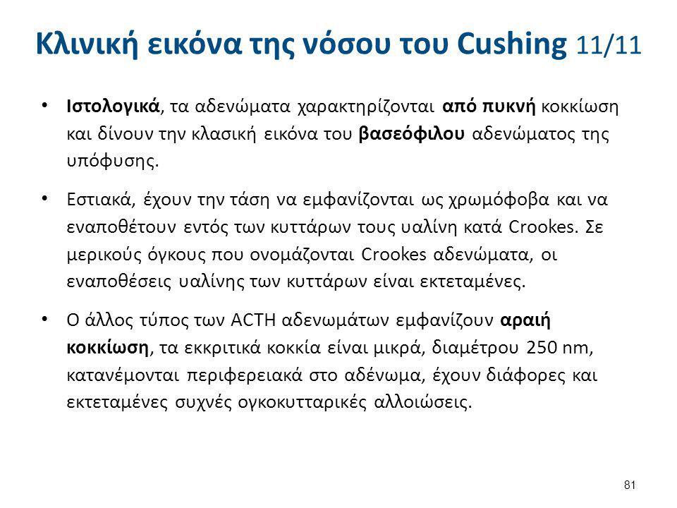 Κλινική εικόνα της νόσου του Cushing 11/11 Ιστολογικά, τα αδενώματα χαρακτηρίζονται από πυκνή κοκκίωση και δίνουν την κλασική εικόνα του βασεόφιλου αδ