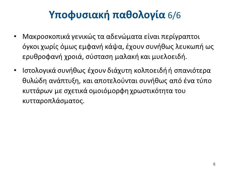 Διαταραχές στόματος και οδόντων στην μεγαλακρία 199 Acromegalyteethgapping , από CSvBibra διαθέσιμο ως κοινό κτήμαAcromegalyteethgappingCSvBibra