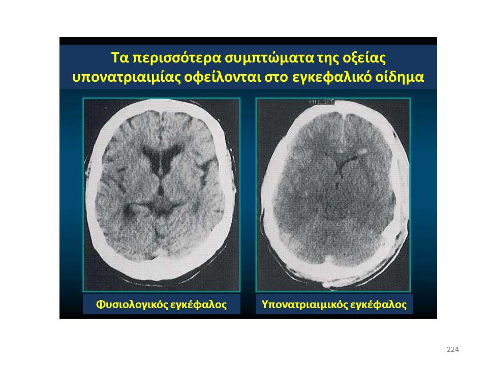 223 Εγκεφαλικό οίδημα 223