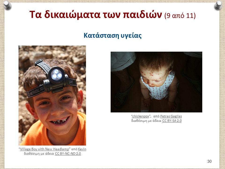 Τα δικαιώματα των παιδιών (9 από 11) Κατάσταση υγείας chickenpox , από Petras Gagilas διαθέσιμη με άδεια CC BY-SA 2.0chickenpoxPetras GagilasCC BY-SA 2.0 Village Boy with New Headlamp από Kevin διαθέσιμη με άδεια CC BY-NC-ND 2.0Village Boy with New HeadlampKevinCC BY-NC-ND 2.0 30
