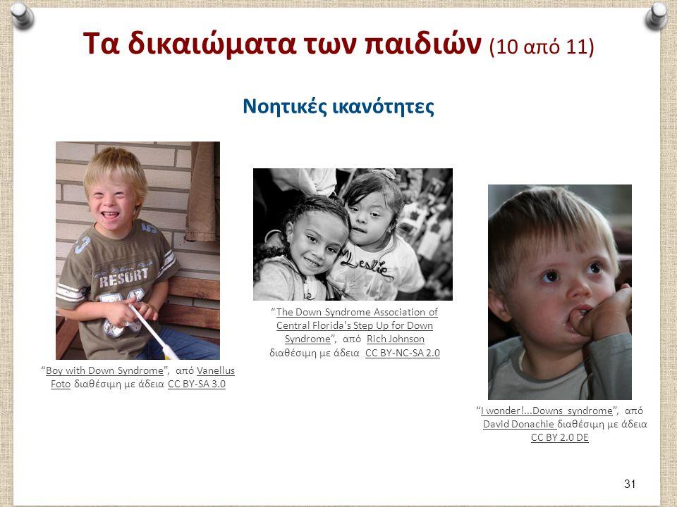 """Τα δικαιώματα των παιδιών (10 από 11) Νοητικές ικανότητες """"Boy with Down Syndrome"""", από Vanellus Foto διαθέσιμη με άδεια CC BY-SA 3.0Boy with Down Syn"""