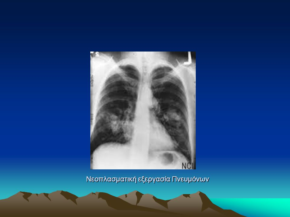 Νεοπλασματική εξεργασία Πνευμόνων