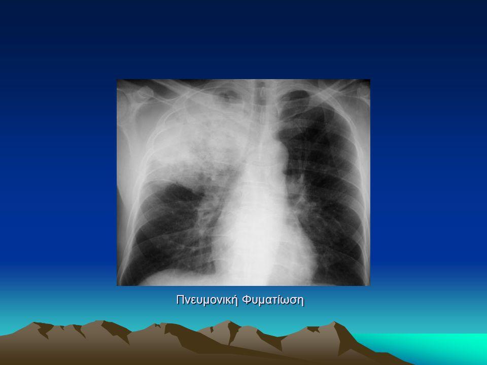 Πνευμονική Φυματίωση
