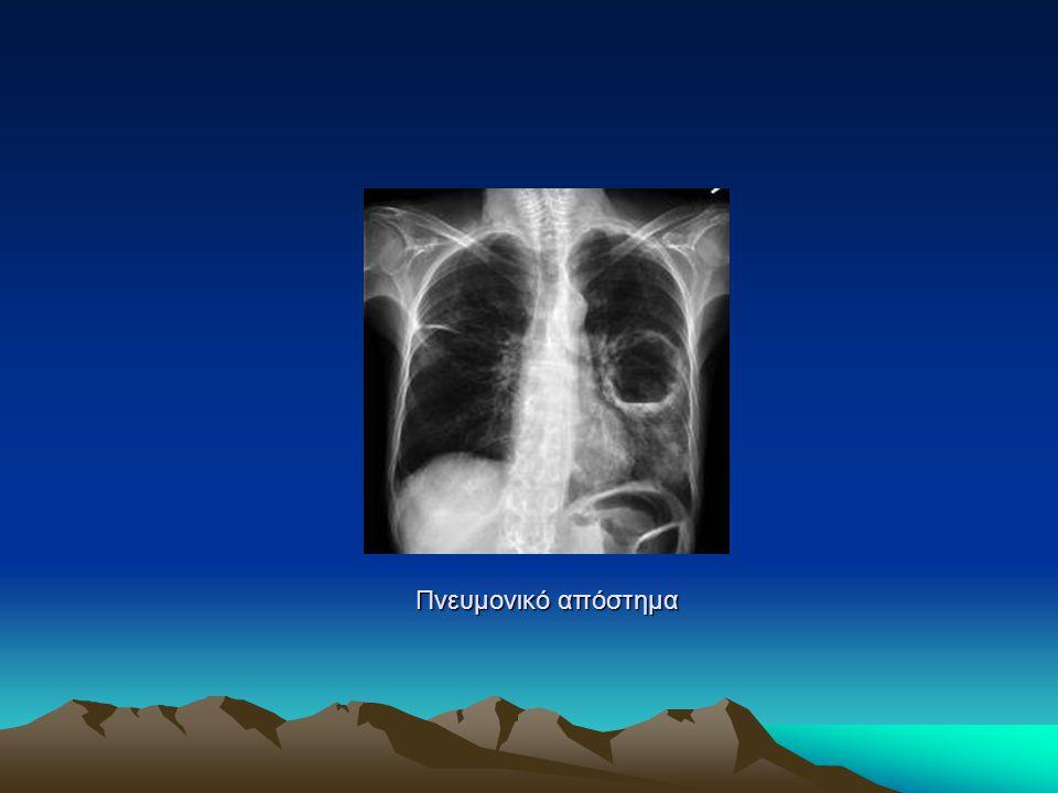 Πνευμονικό απόστημα