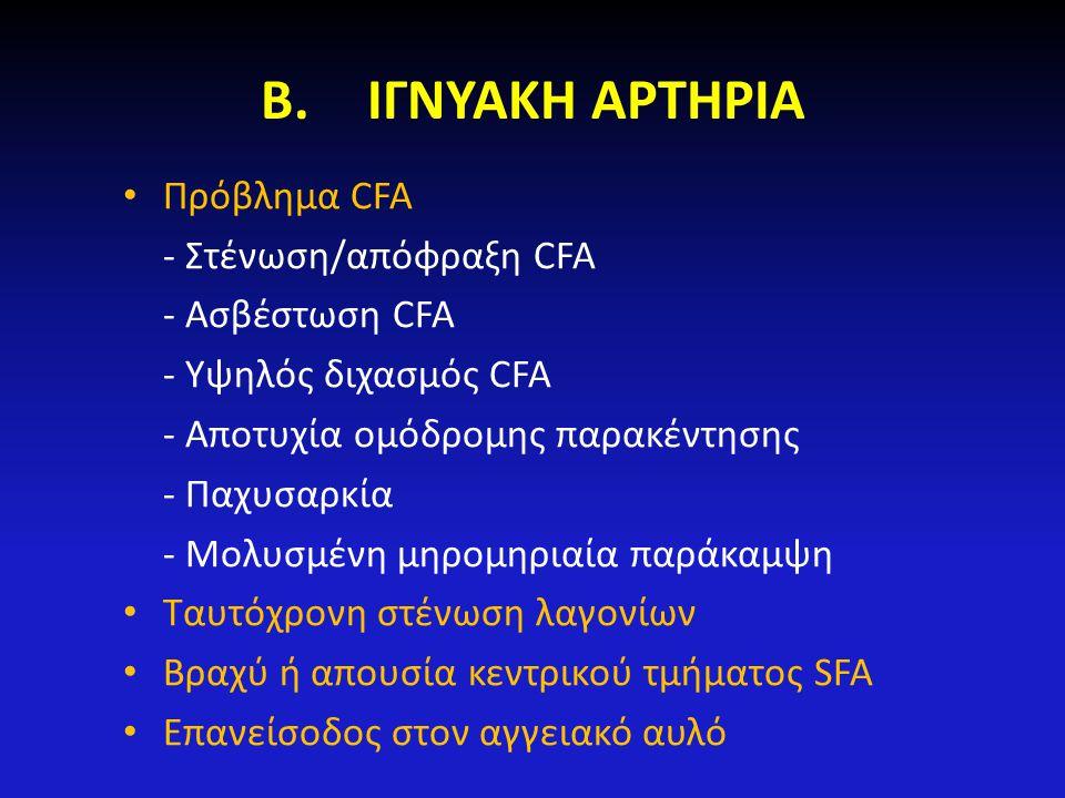 Β.ΙΓΝΥΑΚΗ ΑΡΤΗΡΙΑ Πρόβλημα CFA - Στένωση/απόφραξη CFA - Ασβέστωση CFA - Υψηλός διχασμός CFA - Αποτυχία ομόδρομης παρακέντησης - Παχυσαρκία - Μολυσμένη
