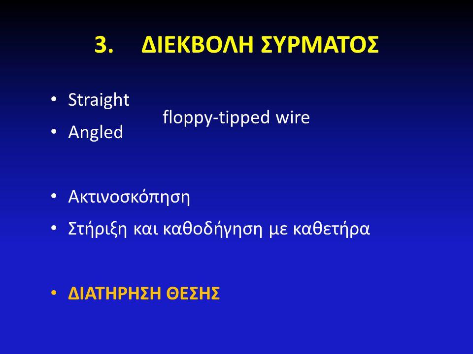 3.ΔΙΕΚΒΟΛΗ ΣΥΡΜΑΤΟΣ Straight Angled Ακτινοσκόπηση Στήριξη και καθοδήγηση με καθετήρα ΔΙΑΤΗΡΗΣΗ ΘΕΣΗΣ floppy-tipped wire