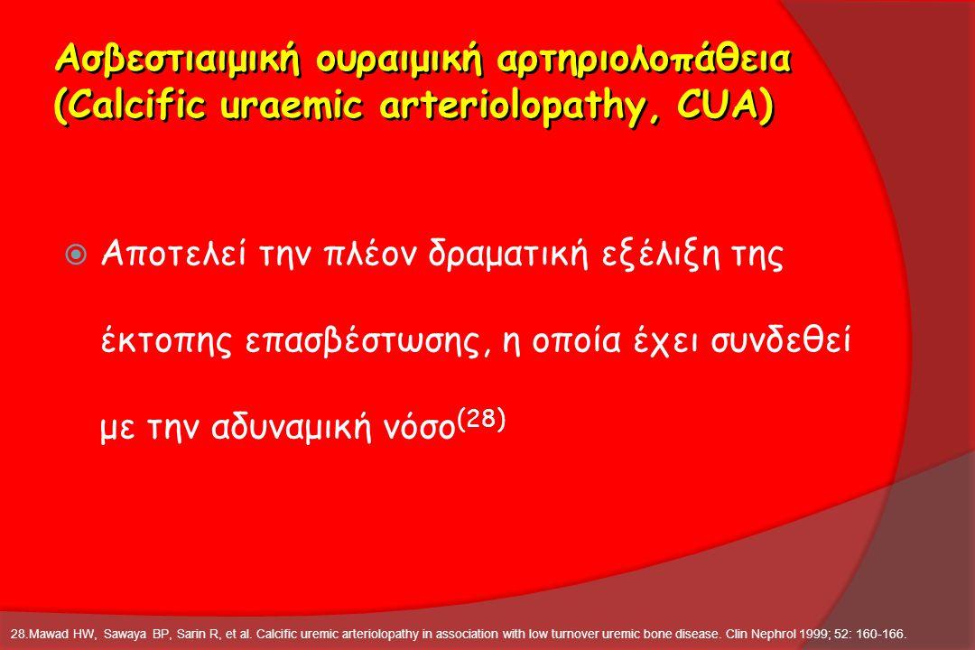 Ασβεστιαιμική ουραιμική αρτηριολοπάθεια (Calcific uraemic arteriolopathy, CUA)  Αποτελεί την πλέον δραματική εξέλιξη της έκτοπης επασβέστωσης, η οποί