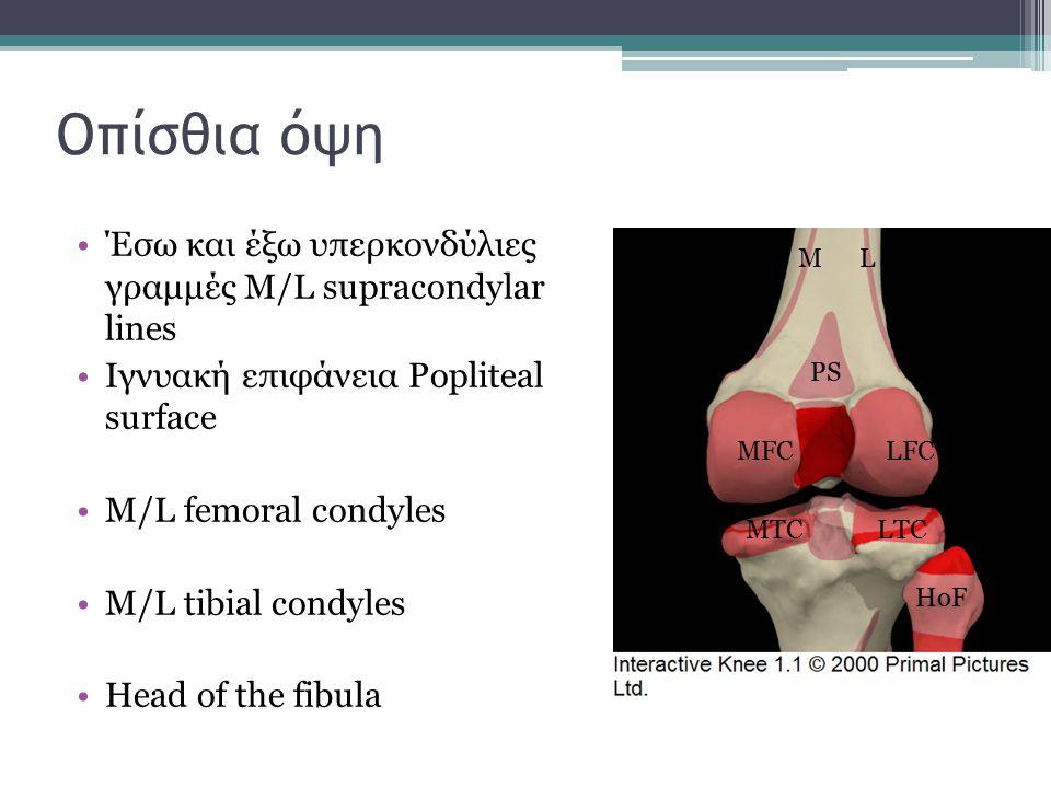 Οπίσθια όψη Έσω και έξω υπερκονδύλιες γραμμές M/L supracondylar lines Ιγνυακή επιφάνεια Popliteal surface M/L femoral condyles M/L tibial condyles Hea