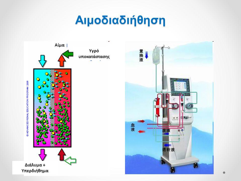 Διάλυμα + Υπερδιήθημα Αίμα Υγρό υποκατάστασης Αιμοδιαδιήθηση