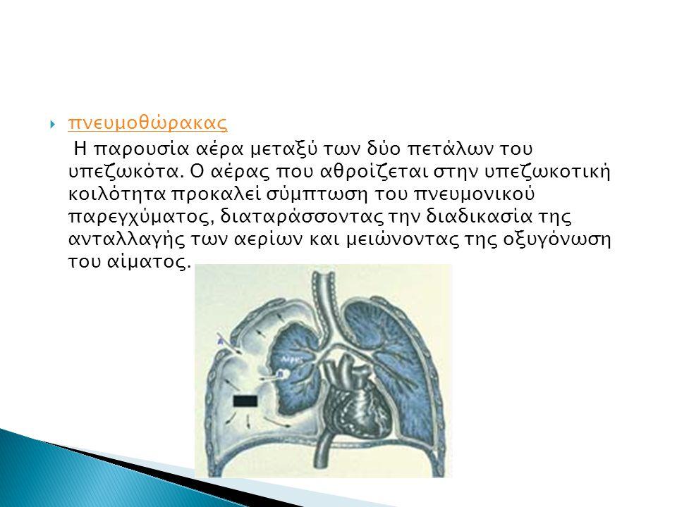  πνευμοθώρακας πνευμοθώρακας Η παρουσία αέρα μεταξύ των δύο πετάλων του υπεζωκότα. Ο αέρας που αθροίζεται στην υπεζωκοτική κοιλότητα προκαλεί σύμπτωσ