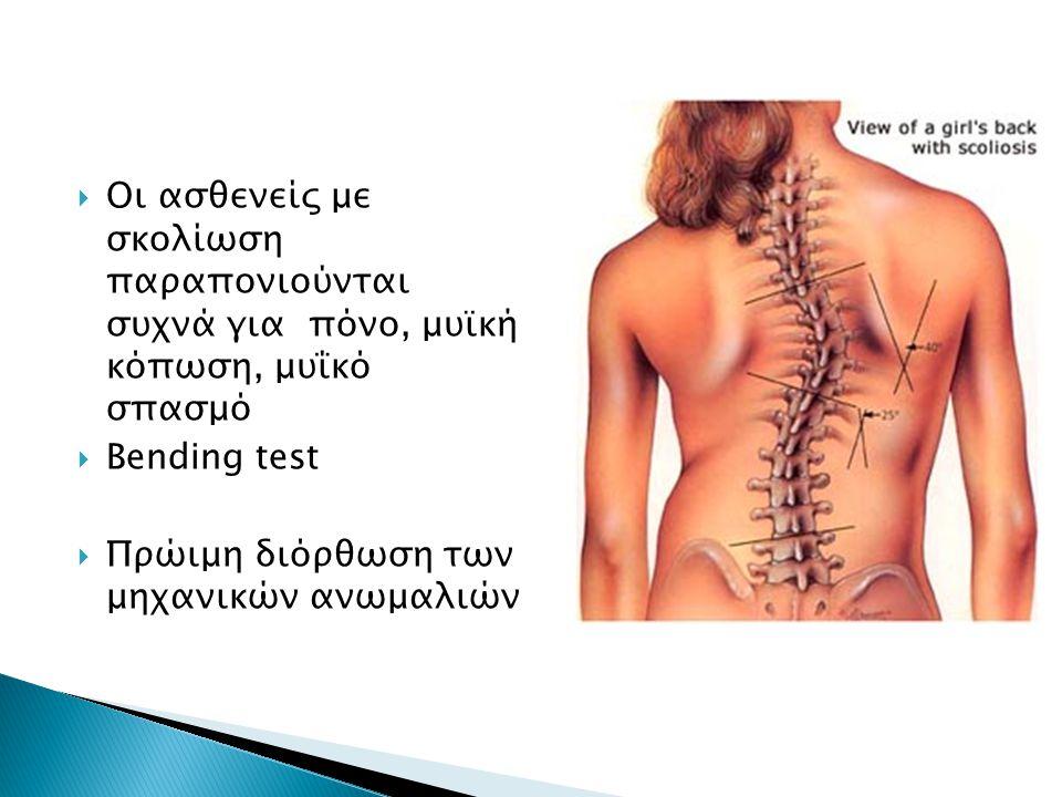  Οι ασθενείς με σκολίωση παραπονιούνται συχνά για πόνο, μυϊκή κόπωση, μυΐκό σπασμό  Bending test  Πρώιμη διόρθωση των μηχανικών ανωμαλιών