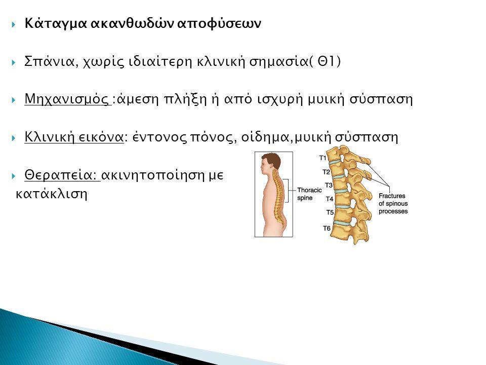  Κάταγμα ακανθωδών αποφύσεων  Σπάνια, χωρίς ιδιαίτερη κλινική σημασία( Θ1)  Μηχανισμός :άμεση πλήξη ή από ισχυρή μυική σύσπαση  Κλινική εικόνα: έν