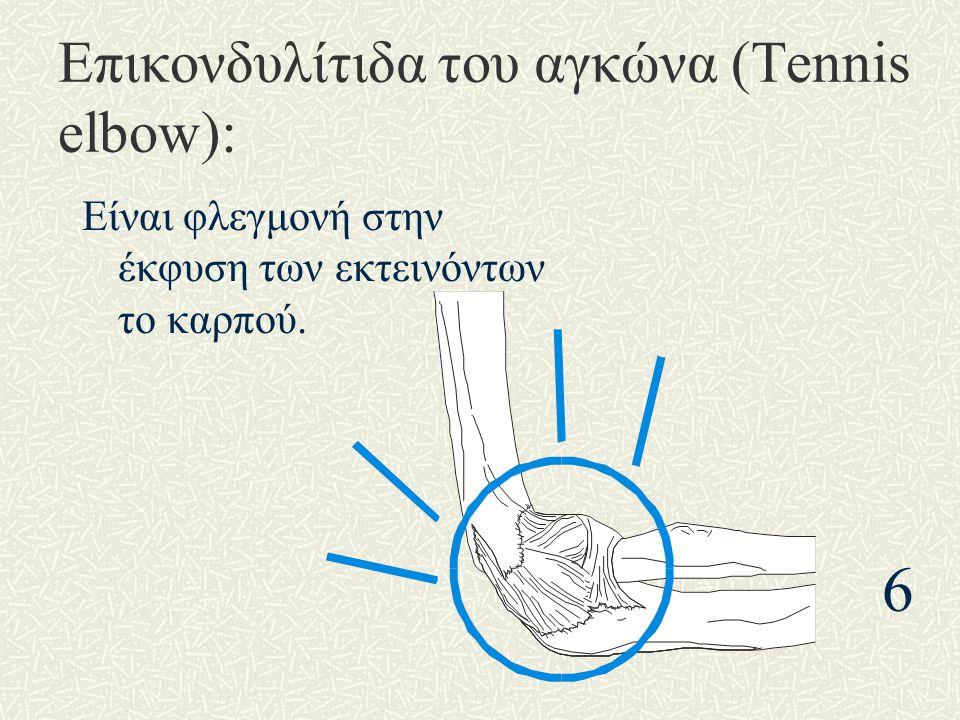 Επικονδυλίτιδα του αγκώνα (Tennis elbow): Είναι φλεγμονή στην έκφυση των εκτεινόντων το καρπού. 6