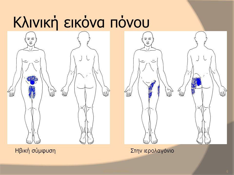 Κλινική εικόνα πόνου SCR/CB/ANP/20136 Ηβική σύμφυση Στην ιερολαγόνιο