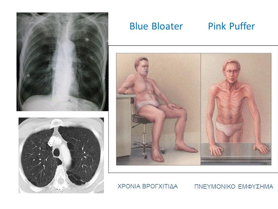 Blue Bloater Pink Puffer ΧΡΟΝΙΑ ΒΡΟΓΧΙΤΙΔΑ ΠΝΕΥΜΟΝΙΚΟ ΕΜΦΥΣΗΜΑ