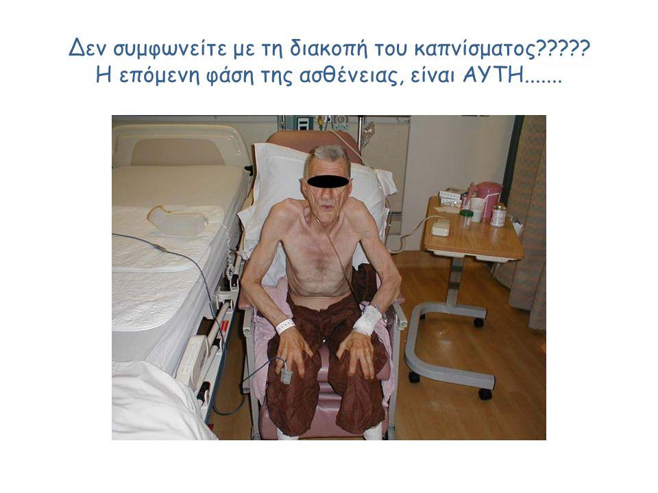 Δεν συμφωνείτε με τη διακοπή του καπνίσματος????? Η επόμενη φάση της ασθένειας, είναι ΑΥΤΗ.......