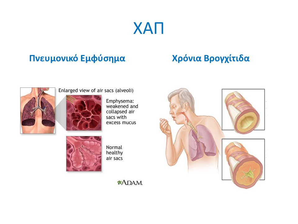 ΧΑΠ Πνευμονικό Εμφύσημα Χρόνια Βρογχίτιδα